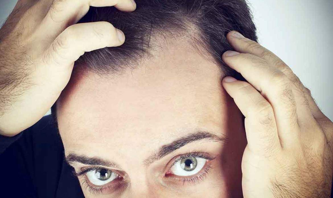 mens-hair-loss-norwood-scale-1170x695