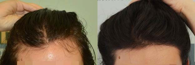 DHI Thessaloniki Female Result-Hairline-thumb_2