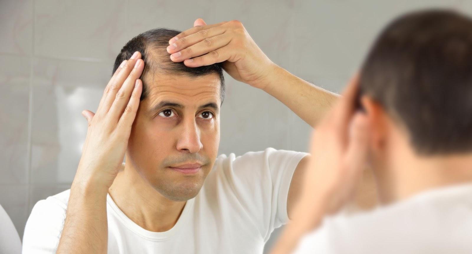 Trasplante capilar costa rica causas de la calvicie DHI