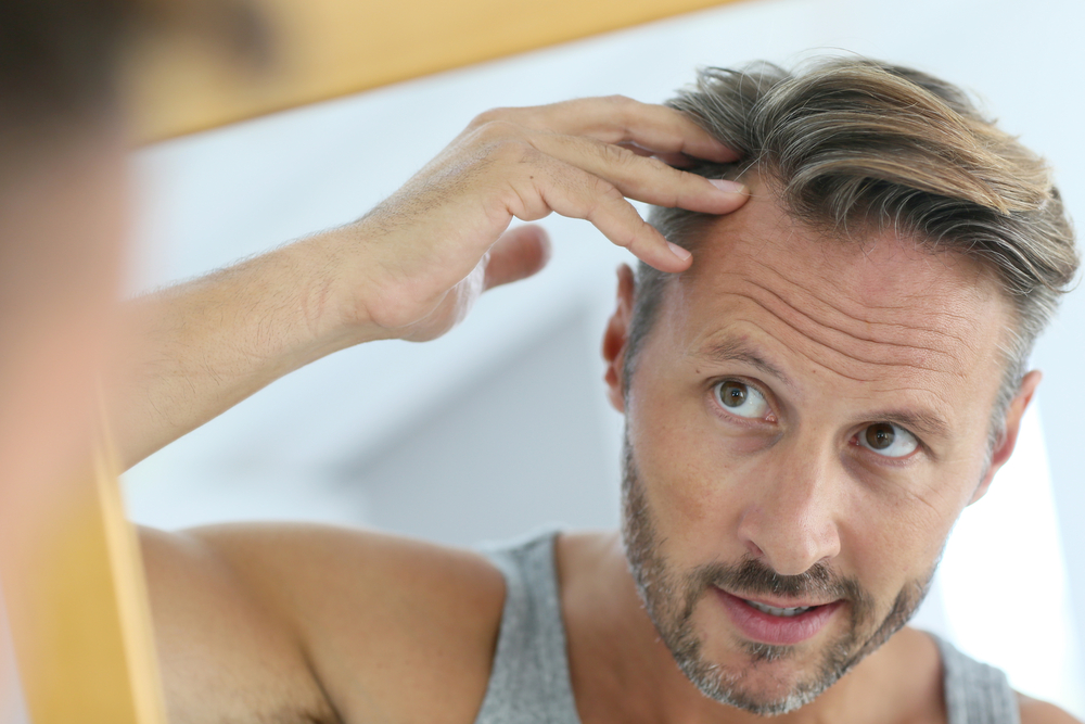 Middle-aged man concerned by hair loss-2