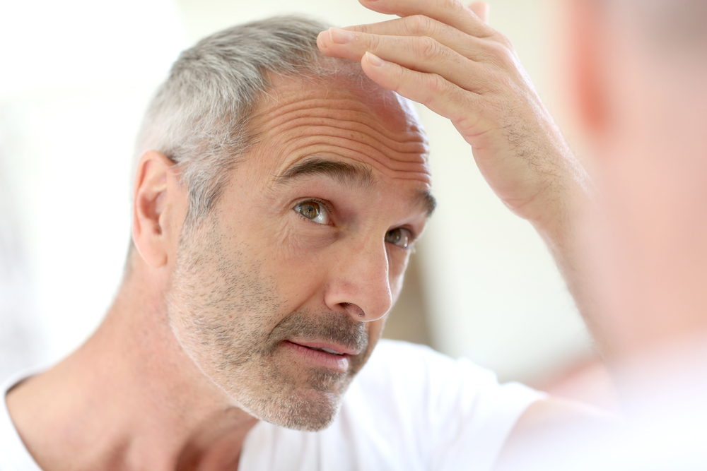 Senior man and hair loss issue-1